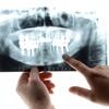 要注意?!その歯科医院でのインプラント治療!
