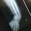 小児における橈骨骨折・・骨幹部?遠位部?遠位端骨折? どれが正しいの?