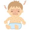 子供の卵アレルギーの発症予防の研究開始のニュースが!どんな研究?