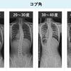 脊柱側弯症 二か月ぶりの診察  ~不登校からの再登校~
