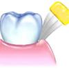 歯科衛生士の皆様、患者さんはハブラシで歯肉溝内なんて磨けません。バス法って本当に正しい? 正しい歯磨き。