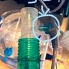 在宅人工呼吸器とカフアシストの勉強会