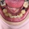 下の抜歯×2本