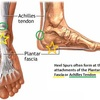Inferior Calcaneal Spur Treatment