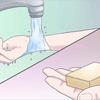 やっとわかったヒアリの応急処置。水でキズを洗う、抗ヒスタミンが効く。