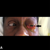 症例113:発熱と眼球突出がある71歳男性 (J Emerg Med. 2017 Feb;52(2):e41-e43.)