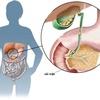 Sỏi mật - Nguyên nhân chính gây ra viêm tụy cấp