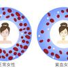 妊娠と貧血