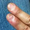 震災前に怪我をした右指