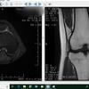 前十字靭帯断裂&半月板損傷から3カ月まで放って運動すると?カナダ留学女子高校生