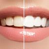 主な審美歯科治療