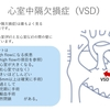 心室中隔欠損症(VSD:Ventricular Septal Defect)について 〜 疾患1