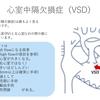 心室中隔欠損症(VSD:Ventricular Septal Defect)について 〜 疾患1