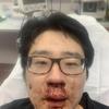 (韓国反応) 「中国ウイルス、消えろ」真昼に英国で中国人バッシング