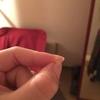インビザラインNo.4〜6 爪割・結婚式