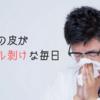 冬になると鼻の皮がズル剥けになるのでその対処方法を教える
