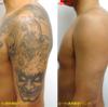 圧倒的症例数!ピコレーザー(エンライトン)でタトゥーを除去しました。8回治療後です。