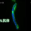 061【免疫系についての最大の誤解】「異物を排除するだけが免疫系ではない!」