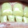 歯が白くなる歯磨きを使ってみる アパガード プレミオ プレミアムタイプ  15日目