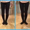 変形性膝関節症改善
