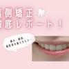 裏側歯列矯正が完了したので、徹底レポートします!〜痛み、値段、ほうれい線への影響など〜