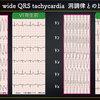 ECG-372:answer=心電図検定試験 傾向と対策 Q.18 =