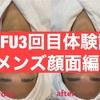 【小顔効果抜群】HIFU(ハイフ)3回目体験談〜メンズ顔面編〜【比較画像あり】