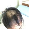 この1週間で一気に髪の毛が抜けた。抗がん剤ってすごい。