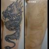肩から腕にかけての2色からタトゥーを薄くしています