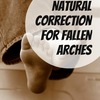 Fallen Arches Explained