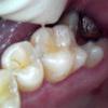 長期間続いた奥歯の咬合痛の治療症例01