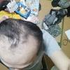 薄毛を治したいならプロペシア