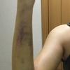 【二の腕脂肪吸引】7日−10日〜抜糸しました〜