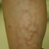 ショックでは特徴的な皮疹が出る(網状皮斑)