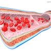 【NHKガッテン】脳梗塞・コレステロール対策にEPAが詰まった青魚を食べよう!【ナッツと緑茶も】