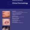 ヘアーマックス 2014年1月 American Journal of Clinical Dermatology 掲載
