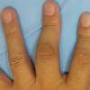 リウマチにおけるボタン穴変形の手術 実所見をもとにした考察
