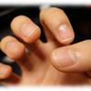 爪が削れる問題を解決したい。