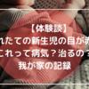 【体験談】生まれたての新生児の目が赤い!これって病気?治るの?我が家の記録。