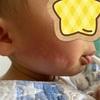 いきなりの蕁麻疹