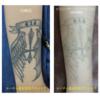 腕のタトゥーにピコレーザー治療を行いました
