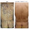 圧倒的症例数 ピコレーザー(エンライトン)でタトゥーを消す。入れた直後から治療開始しました。8回治療後です。