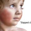 小児科医が解説するりんご病(伝染性紅斑)