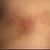 症例:BMJ  67歳女性 背中が痒い