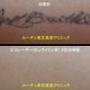 薄い黒のタトゥーがピコレーザーで綺麗になりました