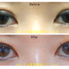 眼尻切開、たれ目形成(下眼瞼下制術・グラマラスライン)、眉毛下切開をしました。目が上、外、下方向に大きくなりました。