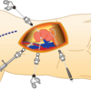 血尿がでたら病院へ!!梅宮辰夫さんを苦しめた尿管がんの治療法とは?