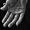 【Dermadryダーマドライ】繁忙期ミュージシャンの多汗症治療の状況報告