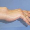 リウマチの腱断裂予防に必要なこと    実は原因は違うところに??