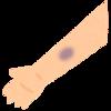 生まれつきのアザ(血管腫と母斑)